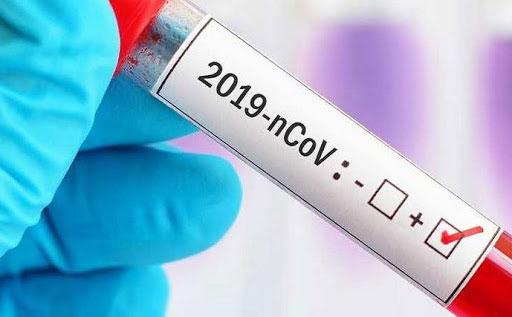 Coronavirus Maroc: 131 nouveaux cas, 12 guérisons et 1 décès de plus