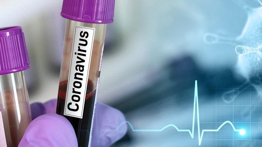 Coronavirus Maroc: 99 nouveaux cas et 119 guérisons ce mardi à 10 H